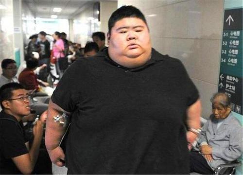 中国第一胖王浩楠:一年减掉363斤,减肥后成功抱得美人归